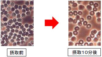 野草酵素飲用前と後の男性30才の赤血球の顕微鏡写真